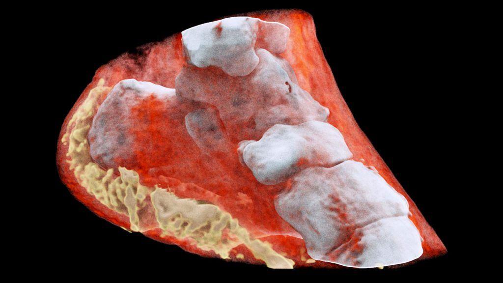 O futuro do raio X: em cores e 3D