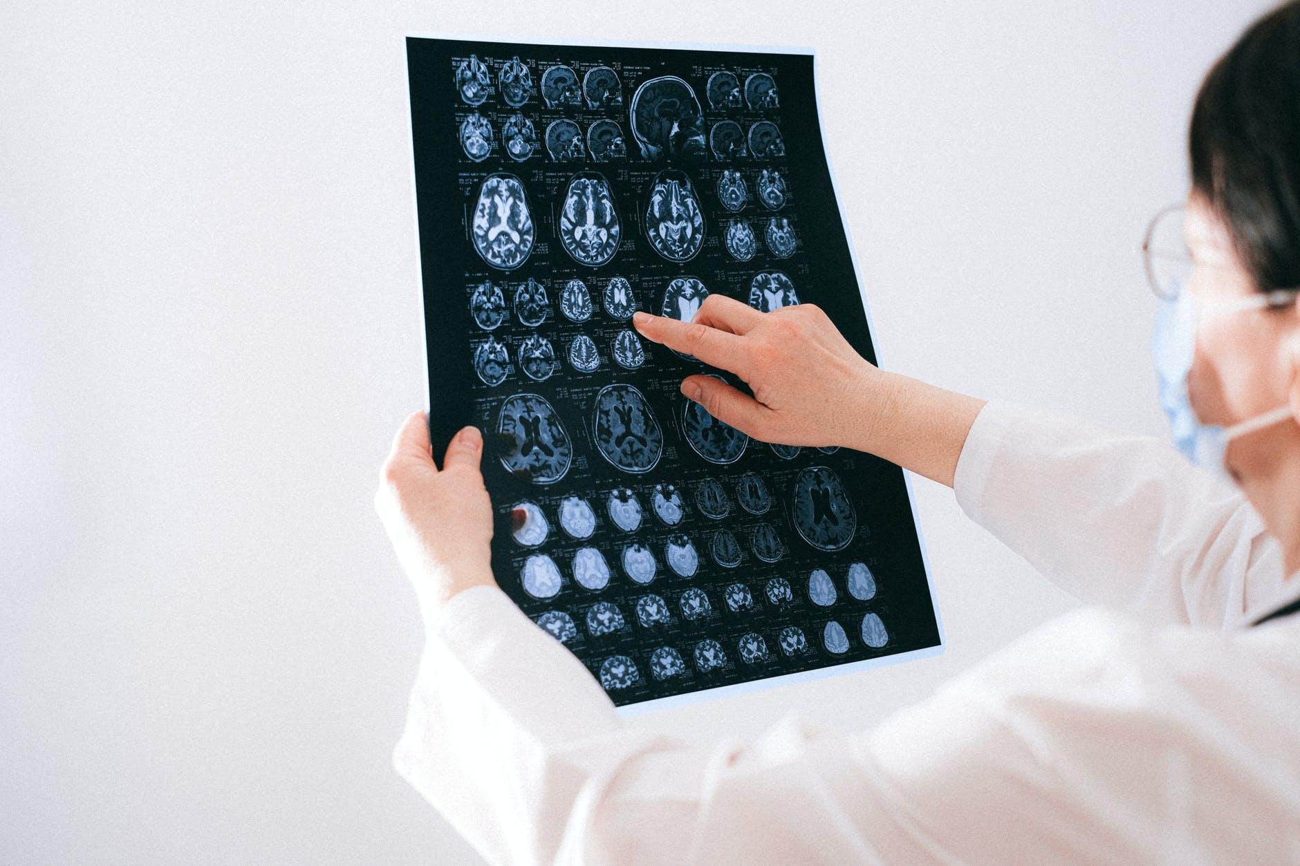 Novo medicamento para esclerose múltipla primária progressiva